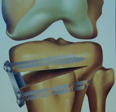 Image – Tibial Osteotomy