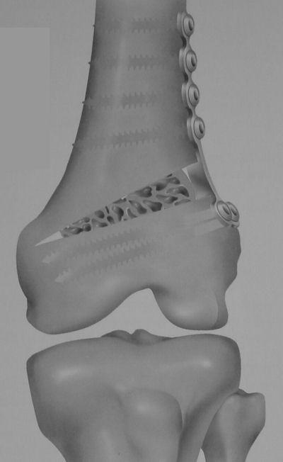 Image -Femoral Osteotomy