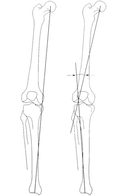 Image-Osteotomy Planning