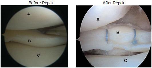 involved-meniscal-surgery