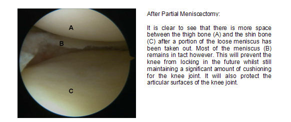 post-partial-meniscal-surgery