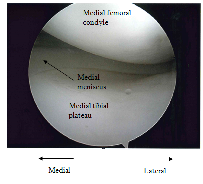 Appendix A – Arthroscopy of the Knee