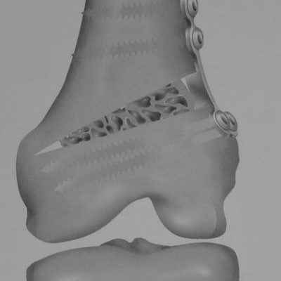 Femoral-Osteotomy