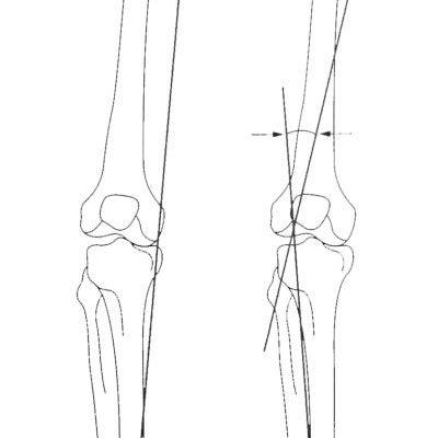 Osteotomy-planning